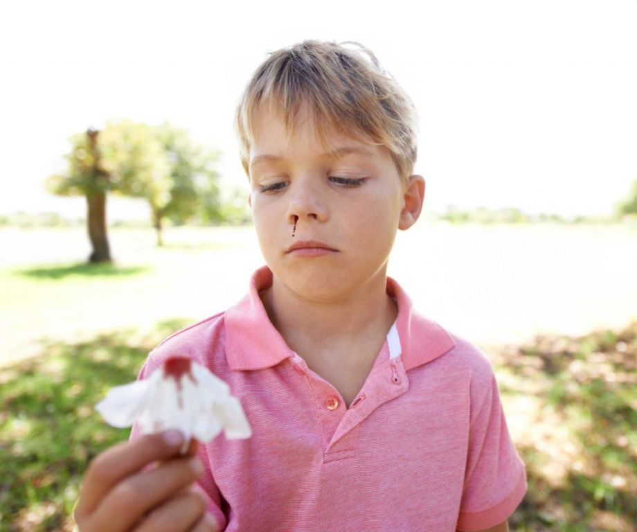 Болит голова и кровь из носа: причины и что делать Здоровье